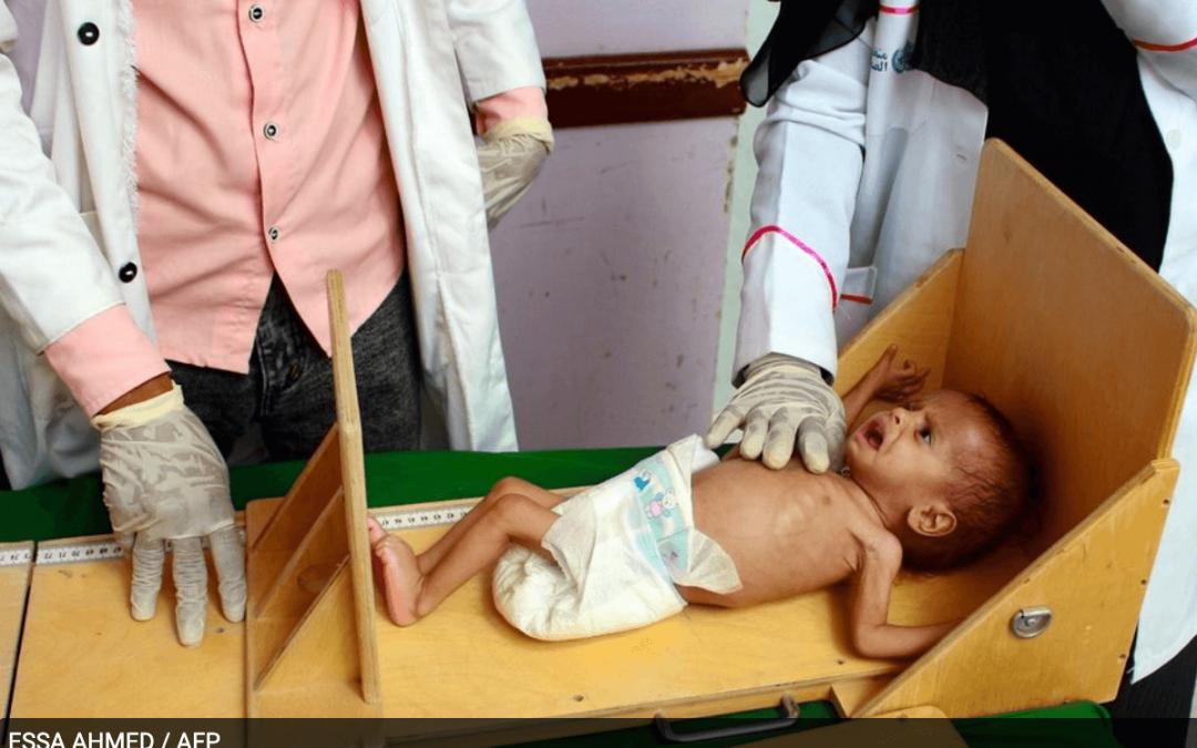 La desnutrición de los niños en Yemen