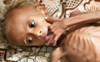Yemen: Coronavirus, desnutrición y hambre