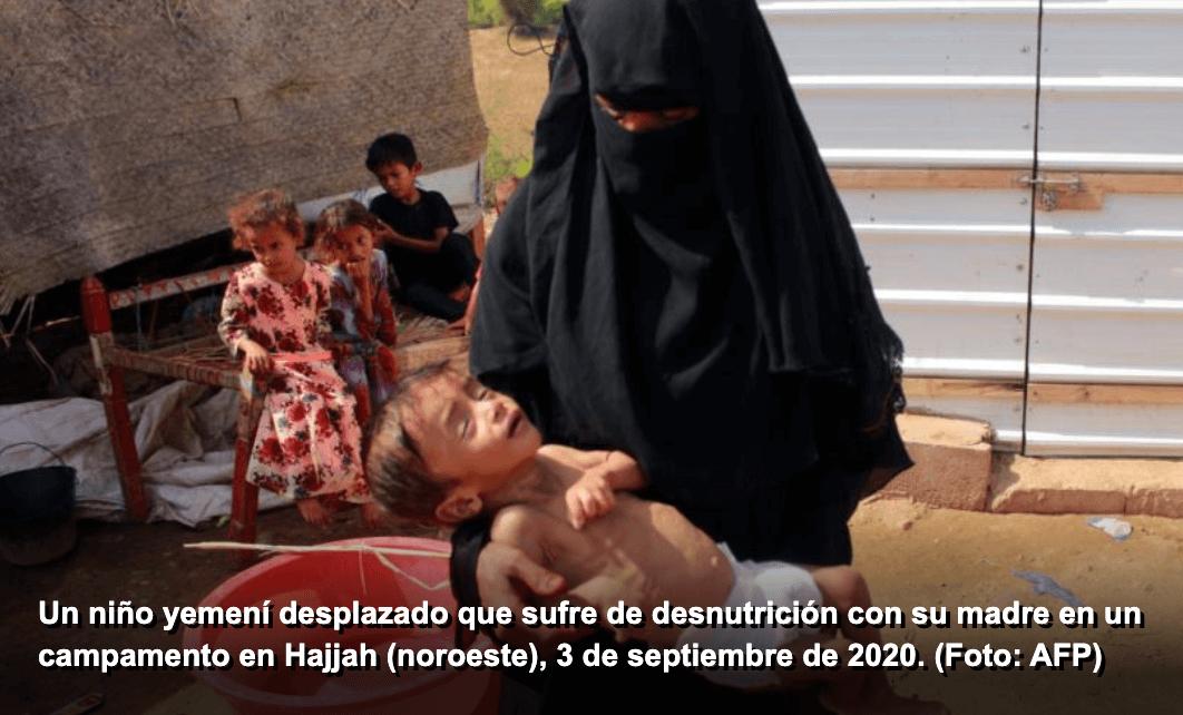 mujeres y niños víctimas de la guerra en Yemen