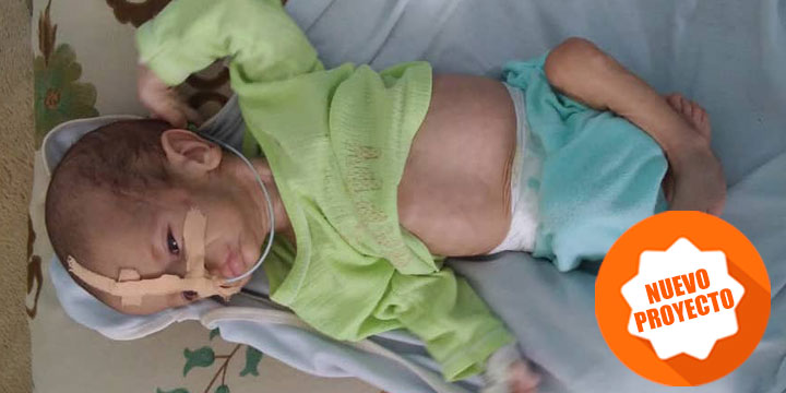proyecto desnutrición en Yemen de Solidarios sin Fronteras
