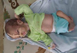desnutrición infantil en Yemen