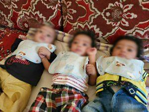 Proyecto para evitar la desnutrición en Yemen
