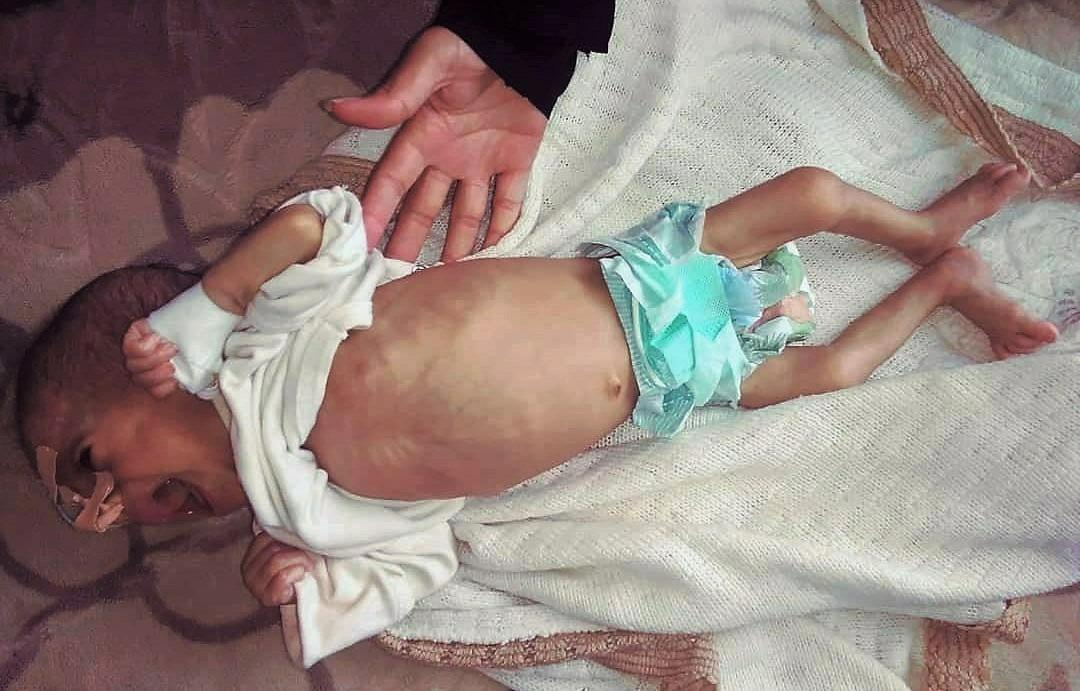 Desnutrición Yemen