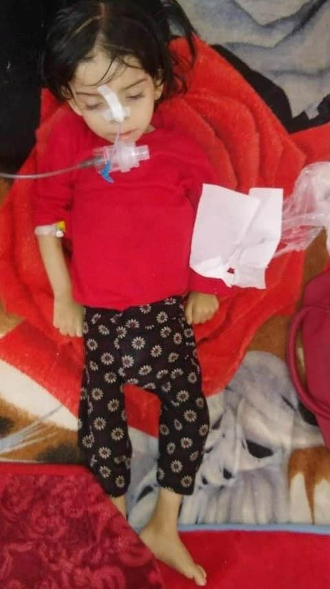 Proyecto desnutrición infantil en Yemen